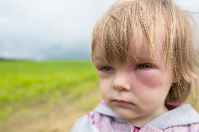 На мед аллергия может возникать по разным причинам