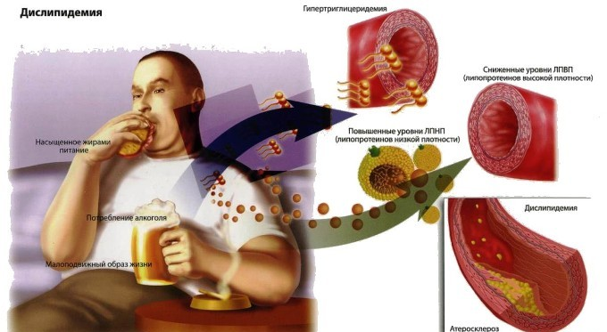 Алкоголь вреден для сосудов
