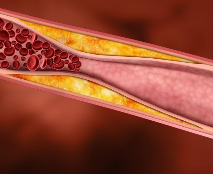 Холестерин для сосудов вреден