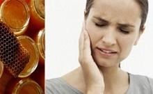 Зубная боль и прополис